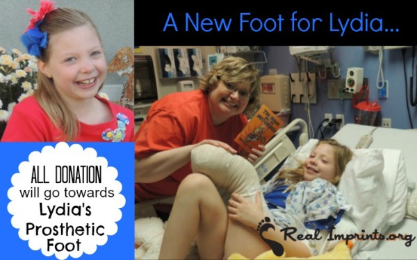 A New Foot for Lydia